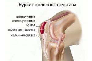 dimexid a térdízület fájdalmában