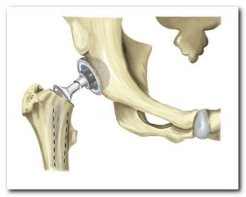 hasznos termékek a csípőízület artrózisához