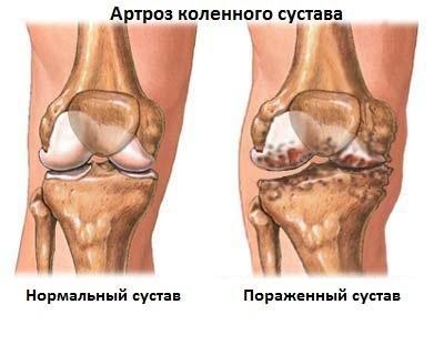 A bokaízület deformálódó ízületi gyulladása