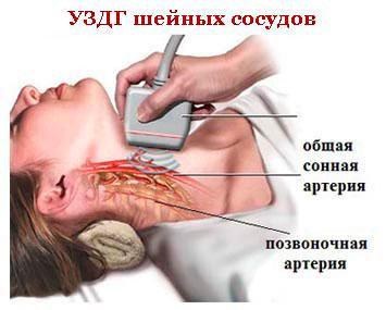 Анатомия позвоночной артерии в шейном отделе. Лечение кровотока по правой позвоночной артерии