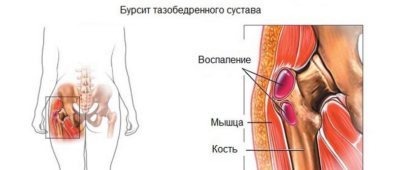 fájdalom a bal csípőízületen)