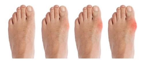 kenőcs a lábak csontritkulásáért a kéz falának ízületeiben fellépő fájdalom okai
