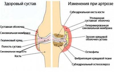 Бубновский мениск коленного сустава