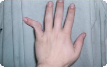 kezelje az ujj-falanx ízületét könyök fájdalomcsillapítók