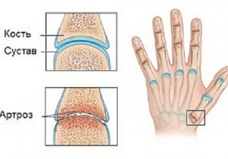 miért fáj az izmok és az ízületek ivás után meg lehet-e gyógyítani a térdízület deformáló artrózisát