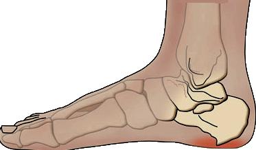 ledbånd ydersiden af foden