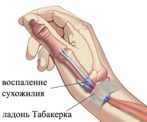 ha a hüvelykujj ízülete fáj
