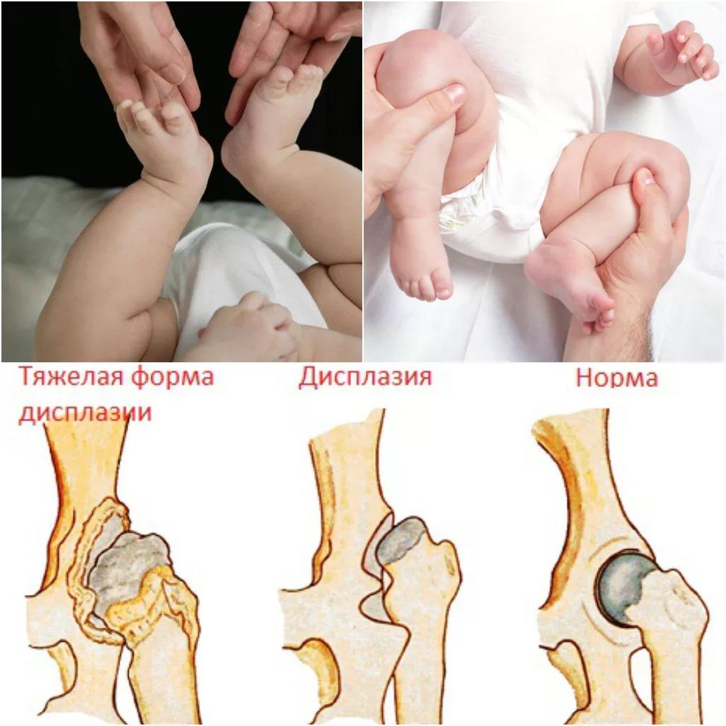 hogyan kezeljük a csípőízület subluxációját csecsemőknél a vállízület kapszula sérülésének kezelése