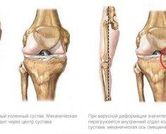 Osteoarthritis a bokaízület tünetek és a kezelés fok