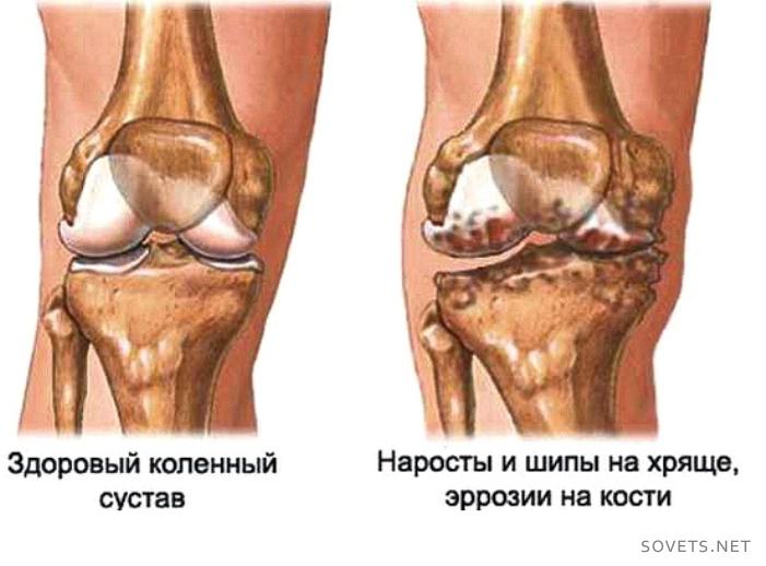 Óbudai Artritisz és Lupus Centrum