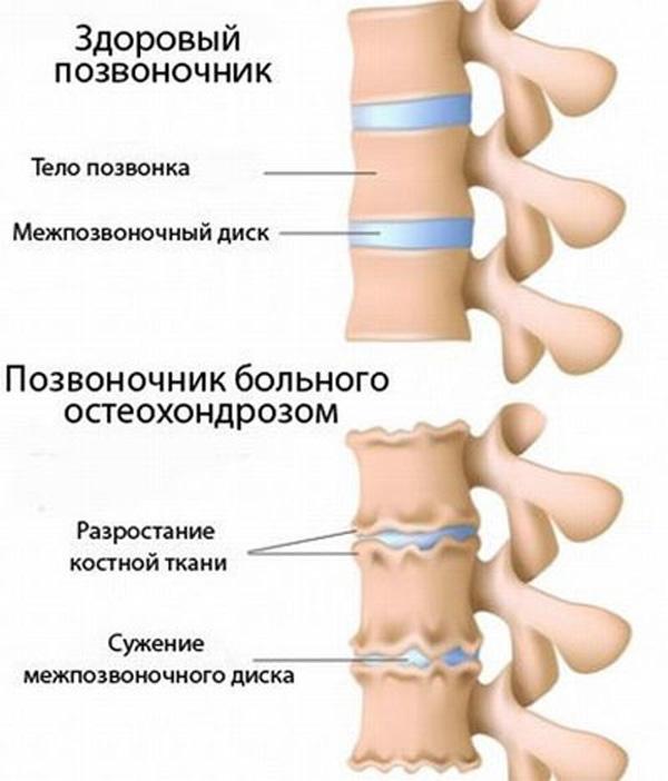 kurpatova gyógyszer a fejfájás és az osteochondrosis kezelésére