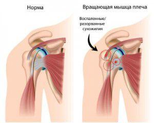a bal vállízület csontritkulása