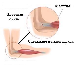 ínszalagok a könyökízület fájdalma