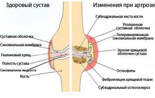 lizin-eszcinált ízületi kezelés térdízület reuma