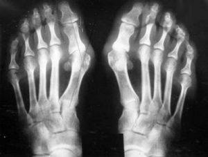 osteoarthritis agyagkezelés