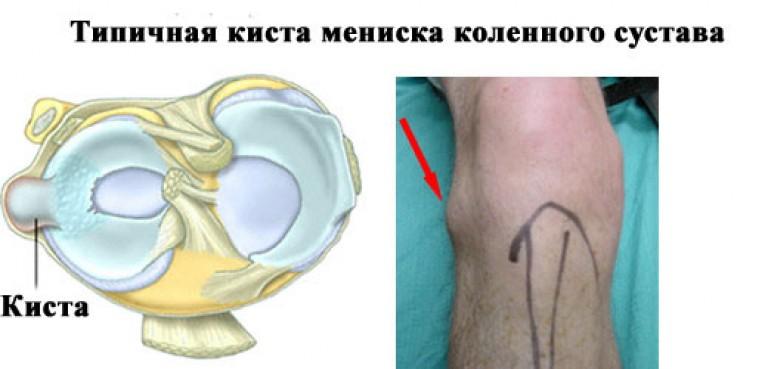 térdízületi meniszkusz kürtének trauma)