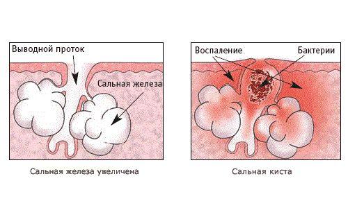 a pénisz lefoglalása a pénisz mérete vizuálisan