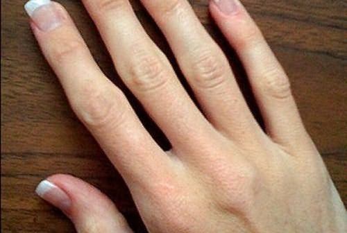 fájdalom az ujjak ízületeiben, ha összenyomódnak