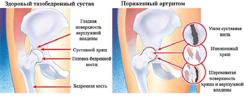 a hüvelykujj ízületei ízületi gyulladása. ujjgyulladás és kezelés