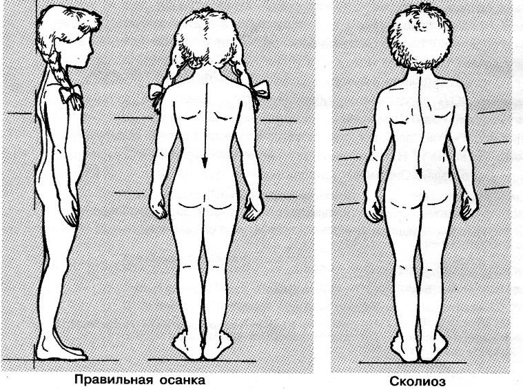 Если одна нога короче другой – что делать. Что делать, если мышцы разного размера.