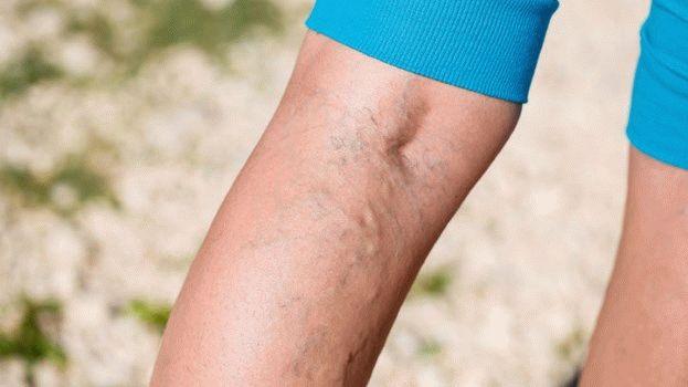 nehézség a lábakban a csípőízületben