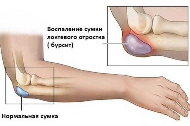 dimexid a könyökízület bursitisének kezelésére)