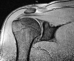 közös kezelés murmanszk az ujjízületeket fáj a kezelés