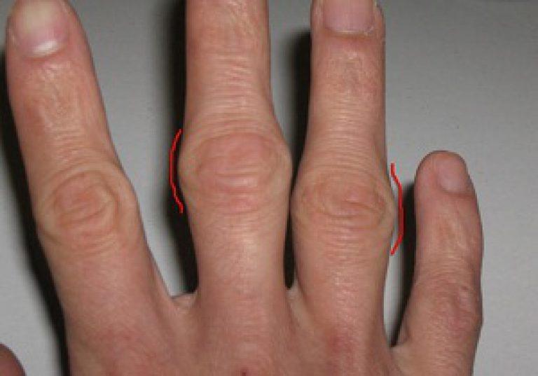 a kéz ízületeinek deformáló artrózisa