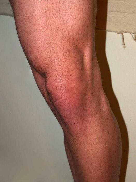 Törés a térd meniszkuszában - Arthritis July
