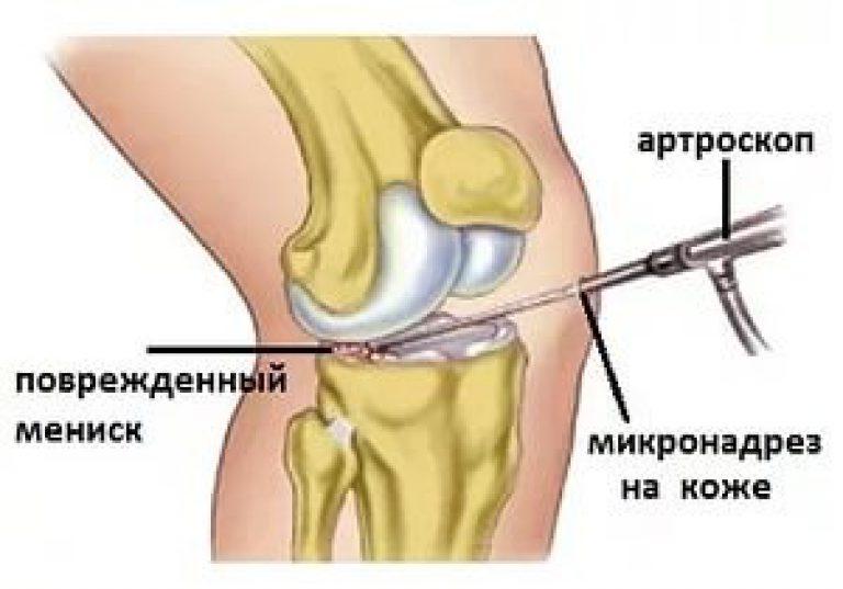 minden ízület deformáló artrózisa 3 fokos kezelés hidrocartisán kenőcs ízületekre