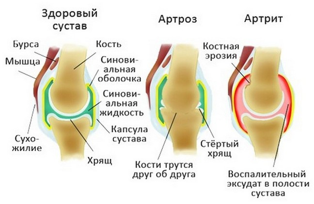 rézlemezek ízületek kezelésére)