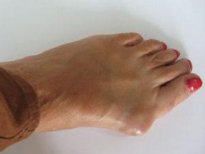 kenőcs a lábak csontritkulásáért)
