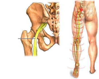 Osteoartikuláris rendszer. Osteochondropathy