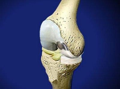 a bokaízület deformáló artrózisa 2 fokkal)