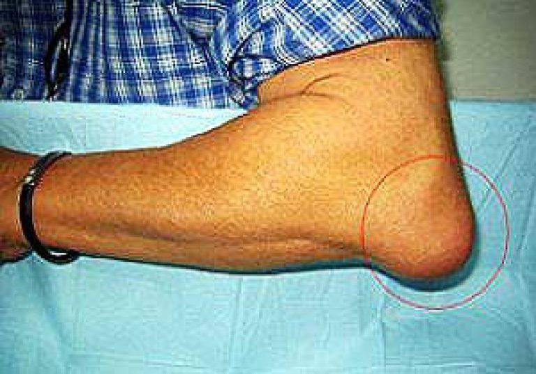 a könyökízület köszvényes bursitisének kezelése