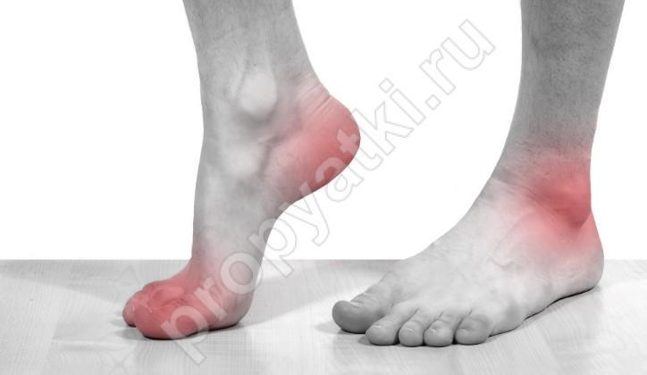 Почему болят стопы ног после сна. Причины боли в ступнях ног по утрам после сна