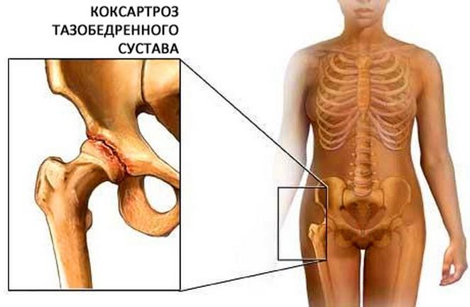 Coxarthrosis - nedir Nedenler, Belirtiler ve Tedavi Yöntemleri