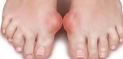 a csípőízületek deformáló artrózisa 3 fokkal